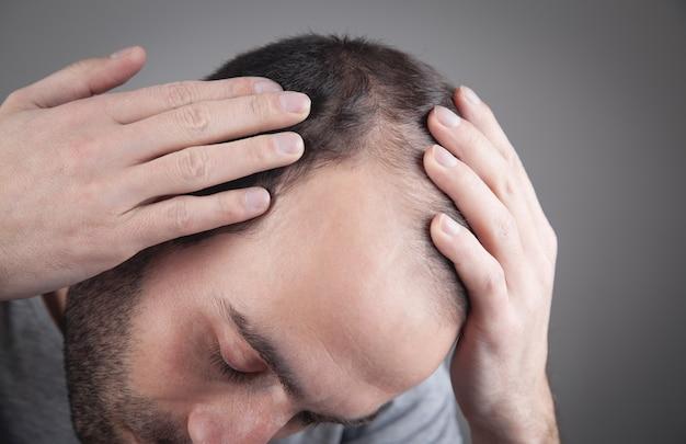 Uomo caucasico che controlla i suoi capelli. problema di caduta dei capelli
