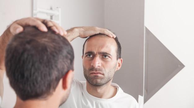 Uomo caucasico che guarda i capelli vicino allo specchio. la perdita di capelli