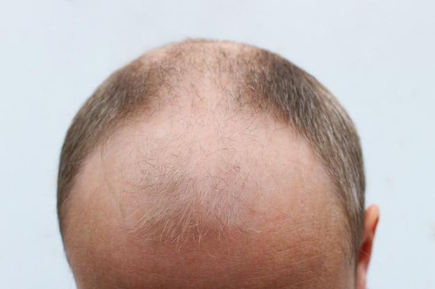 Calice e testa senza capelli
