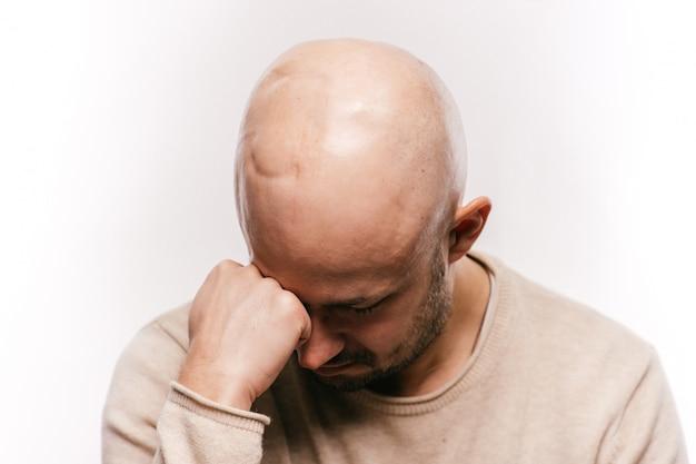 Segni di testa chemioterapia e irradiazione dell'uomo stressato.