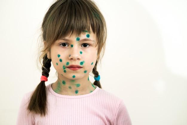 Bambina ricoperta di eruzioni cutanee verdi sul viso malata di varicella, morbillo o virus della rosolia.