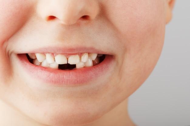 Il sorriso di un bambino senza denti da latte più bassi.