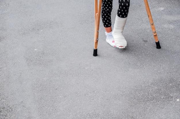 Bambino con stampelle e gambe rotte per camminare. gamba rotta, stampelle in legno, infortunio alla caviglia.