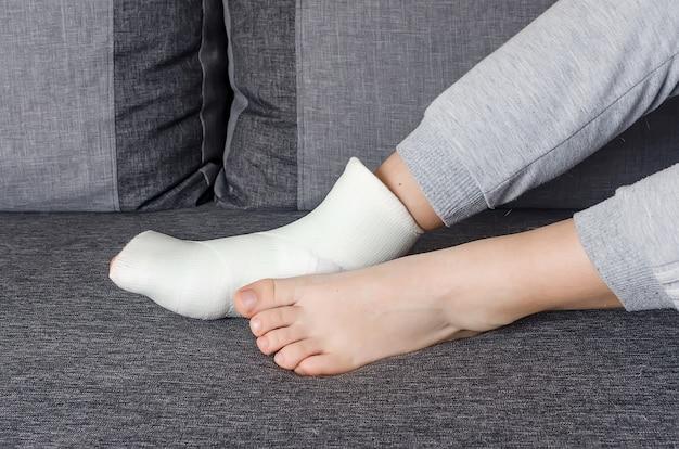 Bambino con bendaggio in gesso su gamba ingessata e dita dei piedi dopo frattura, lussazione, distorsione.