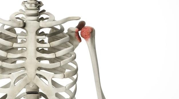 Il rendering cinema 4d delle malattie dell'articolazione della spalla umana è isolato su uno sfondo bianco
