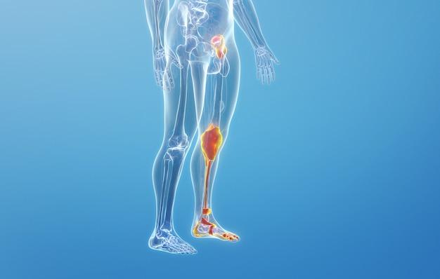 Cinema 4d rendering della malattia del menisco dell'articolazione ossea della gamba umana