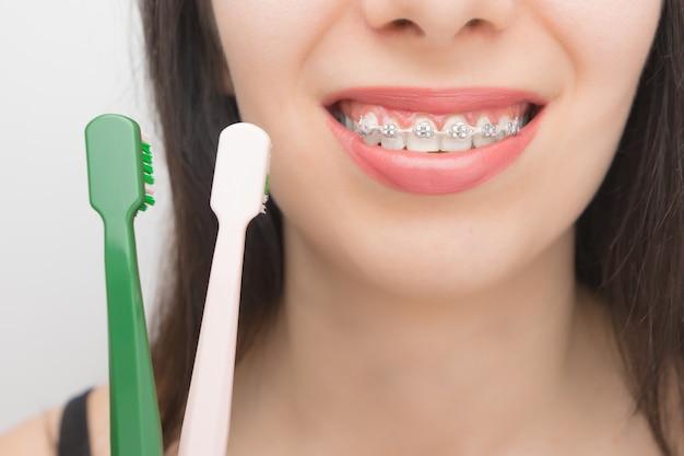 Pulizia dei denti con apparecchi ortodontici mediante spazzole. donna felice con parentesi sui denti dopo lo sbiancamento. staffe autoleganti con fascette metalliche ed elastici grigi o elastici per un sorriso perfetto.