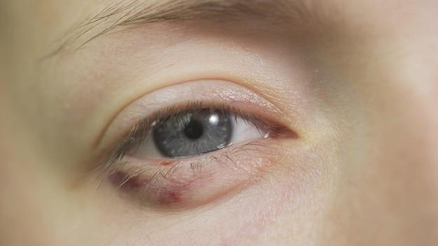 Primo piano del volto di donna abusata con livido. colpo traumatizzato terrorizzato impotente, vulnerabile