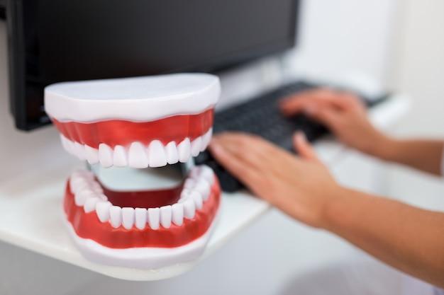 Primo piano di mascelle artificiali e dentista utilizzando il computer in clinica odontoiatrica