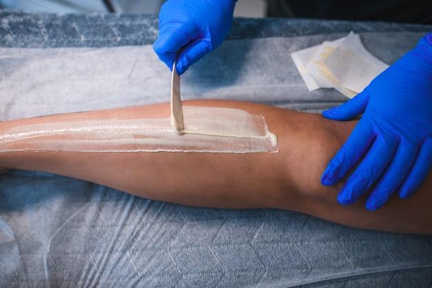 Close-up di un'estetista depilazione con cera calda gamba di donna in beauty spa
