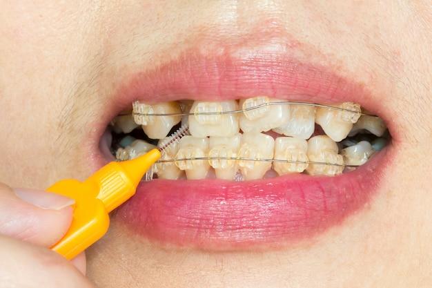 Primo piano denti storti con parentesi graffe, spazzolatura interdentale