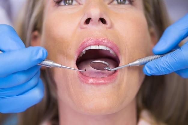 Chiuda in su del paziente d'esame del dentista