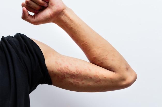 Close up dermatite sulla mano dell'uomo, dermatite allergica eczema dermatite cutanea di un paziente. struttura del dettaglio della pelle dei sintomi della dermatite atopica, fungo della pelle. il concetto di dermatologia.