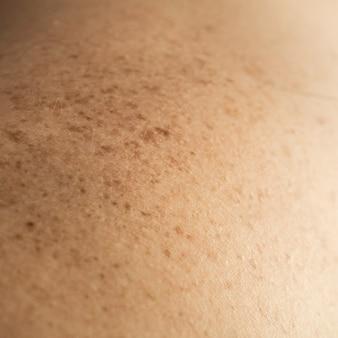 Primo piano dettagliato della pelle nuda sulla schiena di un uomo con talpe e lentiggini sparsi. controllo dei nei benigni