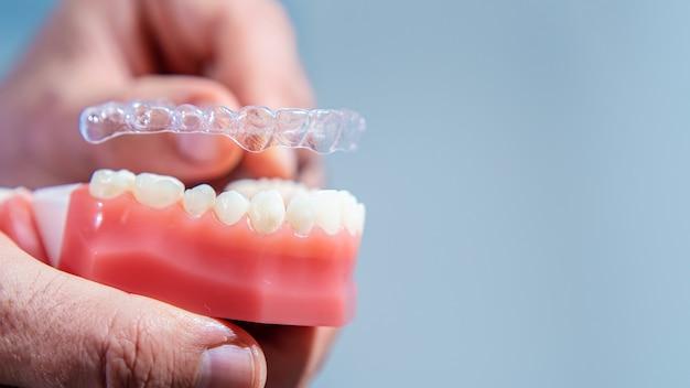 Avvicinamento. il medico mette allineatori trasparenti sui denti della mascella artificiale