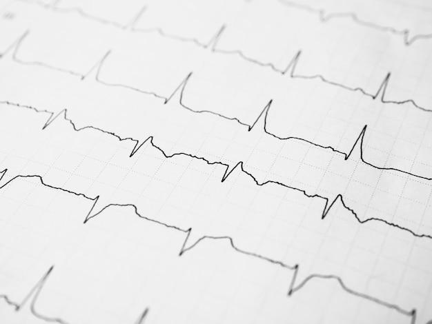 Primo piano di un elettrocardiogramma in formato cartaceo ecg o ekg record paper