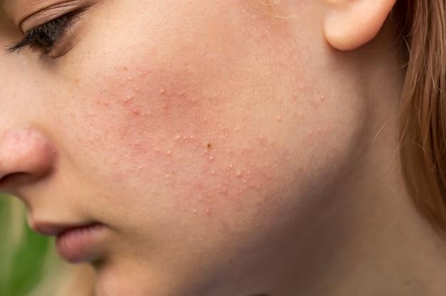 Primo piano volto di una giovane ragazza con problemi di pelle