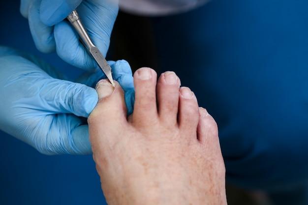 Pedicure del piede ravvicinato, maestro rimuove parte dell'unghia con una pinza, cura delle unghie dei piedi.