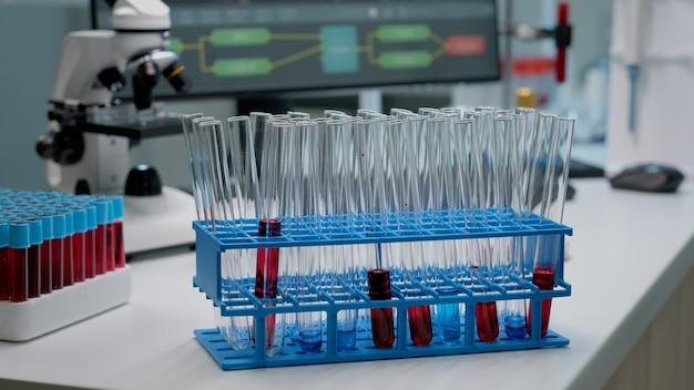 Primo piano di vetreria per soluzione fluida o dna in laboratorio