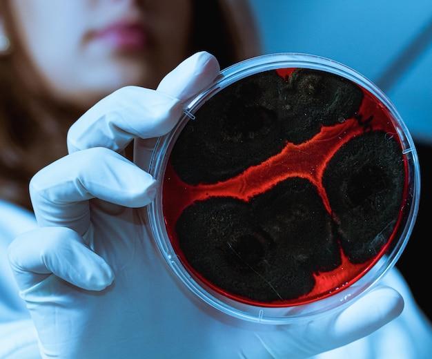 Primo piano delle mani che tengono una cultura nella capsula di petri.