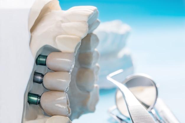 Close up implan modello dente supporto fisso ponte implan e corona. Foto Premium