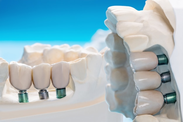 Primo piano modello di impianto supporto del dente per fissare il ponte e la corona.