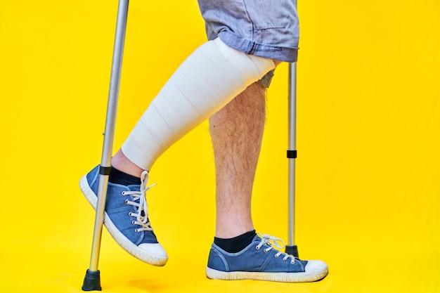 Primo piano le gambe di un uomo di profilo destro che indossa pantaloncini e con le stampelle, con una gamba fasciata.