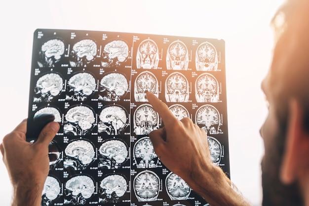 Il primo piano di un medico maschio esamina i raggi x di mri