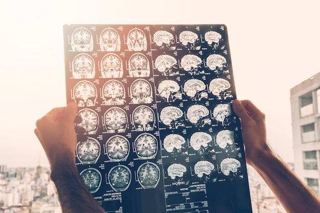 Primo piano della mano di un medico maschio guardando l'immagine di risonanza magnetica del cervello