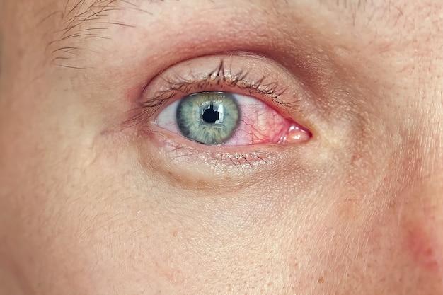 Primo piano di un volto maschile con gli occhi rossi.
