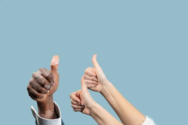 Primo piano di mani maschili e femminili con pigmenti di vitiligine isolati su sfondo blu. indossare abiti da ufficio. pelle speciale