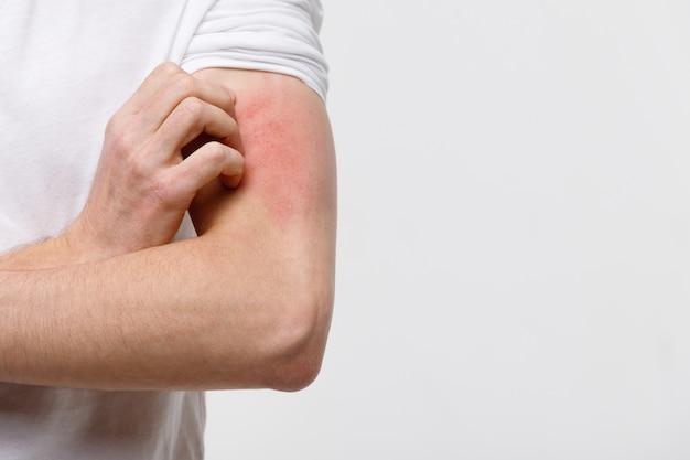 Chiuda in su del maschio che graffia il prurito sulla sua mano, isolato su priorità bassa grigia