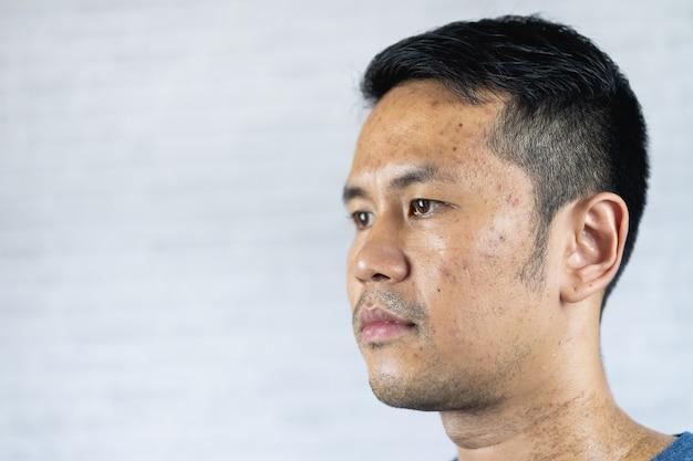 Primo piano del problema dell'acne dell'uomo su sfondo grigio