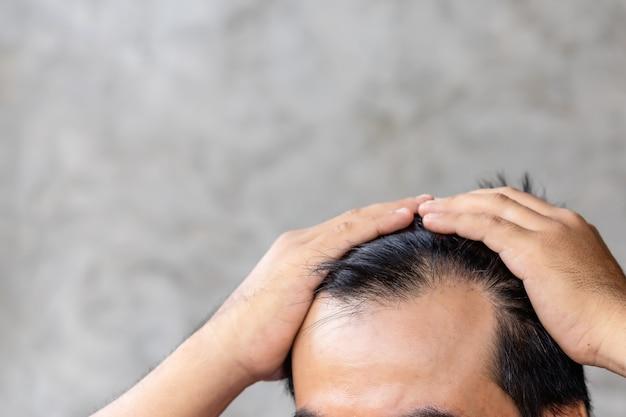 Chiuda sull'uomo che tocca la sua testa per mostrare la testa calva o il problema glabro.