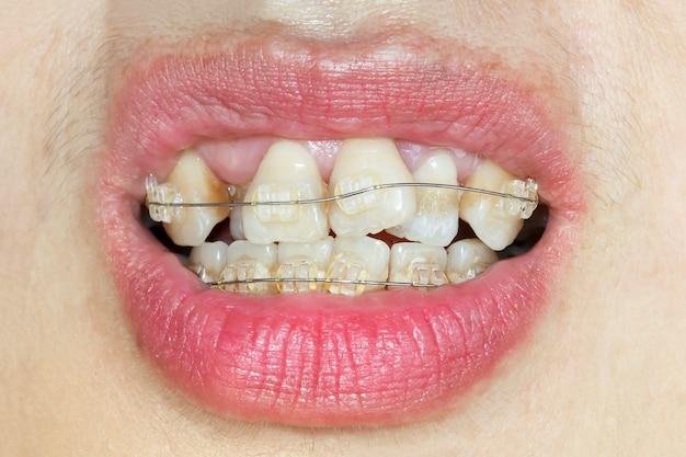 Bocca del primo piano dei denti storti con le parentesi graffe