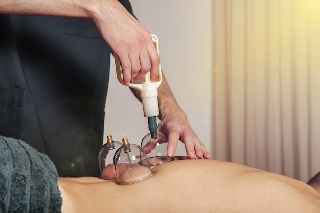 Primo piano per più ventose, terapia medica di coppettazione sul corpo umano. dottore con le tazze