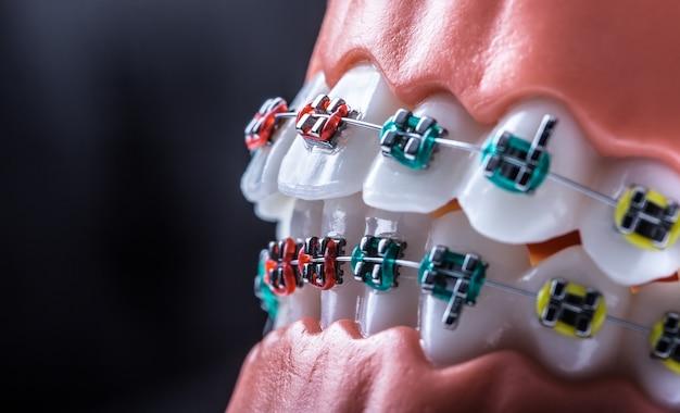 Close-up di un modello ortodontico mascelle e denti con bretelle.