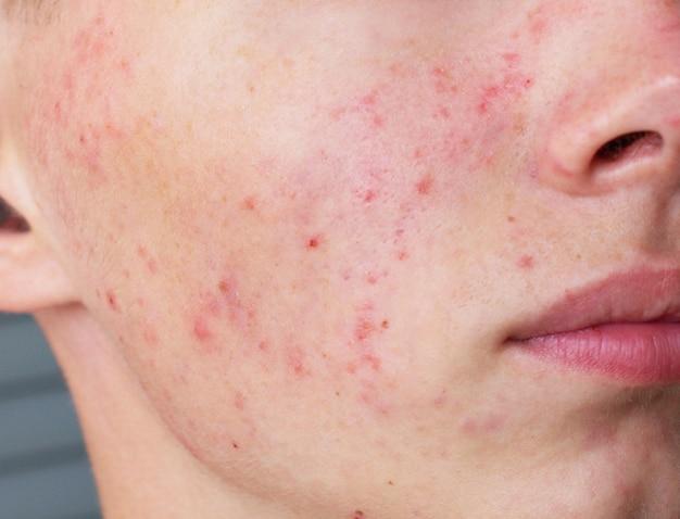 Foto ravvicinata di brufoli, macchie di brufoli sulla pelle del viso di un adolescente