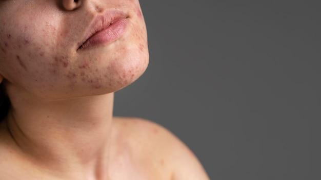 Ritratto del primo piano di giovane donna con l'acne