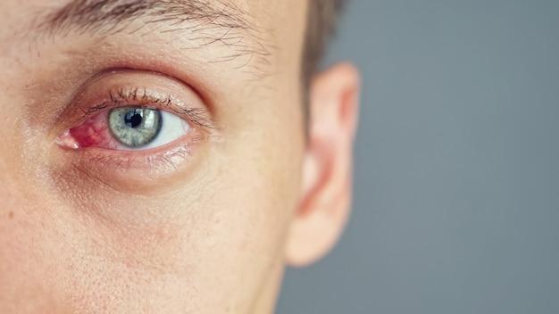 Primo piano dell'occhio rosso di un uomo affetto da un'infezione, spazio di copia