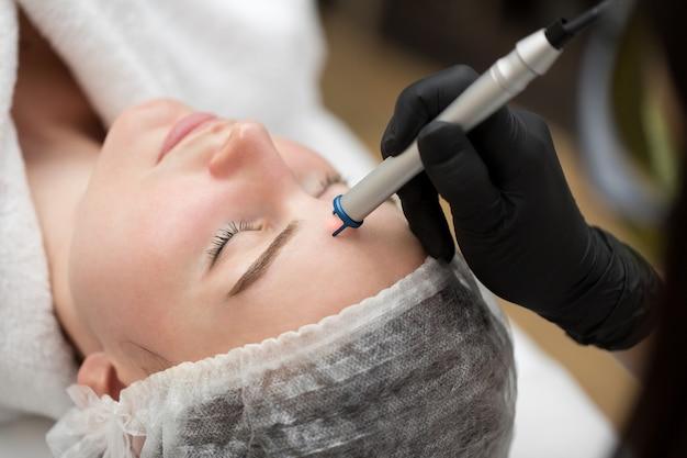 Rimozione ravvicinata dei vasi sanguigni sulla faccia di un laser a diodi in una clinica cosmetica. t