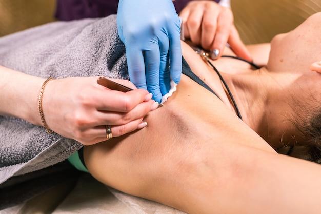 Primo piano di rimozione dei peli delle ascelle con le pinzette. depilazione femminile. cosmetologia e salone di bellezza