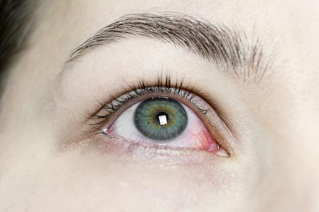 Primo piano di un grave arrossamento iniettato di sangue. blefarite virale, congiuntivite, adenovirus. occhio irritato o infetto.