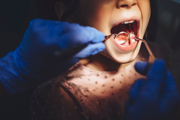 Chiuda in su dei denti bianchi che fanno l'esame dopo la chirurgia dei denti in una stomatologia pediatrica.