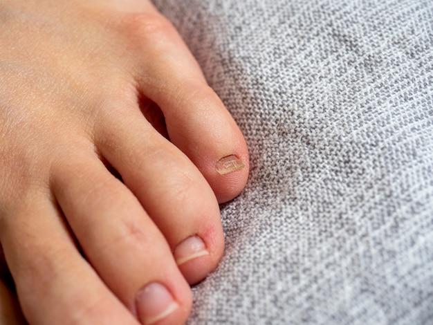 Primo piano del piede di una donna con problemi alle unghie sdraiato su una coperta grigia