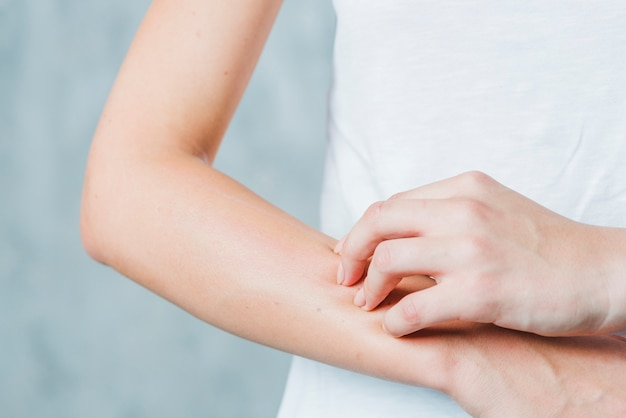 Primo piano della mano di una donna che graffia la sua mano