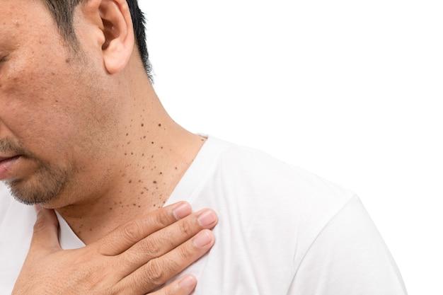Chiuso le etichette della pelle o acrochordon sull'uomo del collo isolato su priorità bassa bianca. concetto di assistenza sanitaria