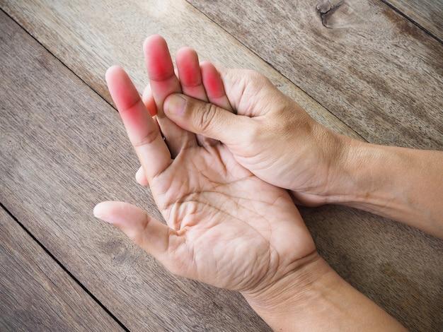 Primo piano del corpo thailandese asiatico con lesioni alla mano, palmo, dito per dolori articolari alle ossa
