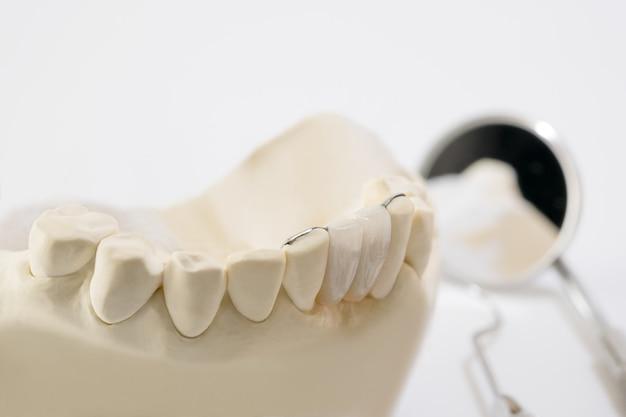 Primo piano / ponte dentale maryland / attrezzatura per ponti e corone e restauro rapido modello.