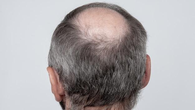 Un primo piano di una testa maschile semicalva, concetto di trapianto di capelli per la caduta dei capelli